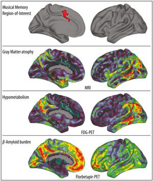 O gráfico mostra (em vermelho, acima) o giro cingulado anterior, onde as memórias musicais são armazenadas. Mais abaixo, visão bilateral de três biomarcadores da doença de Alzheimer; em vermelho, as áreas mais afetadas.