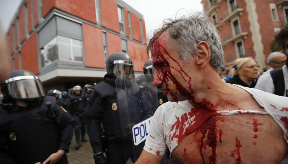 Ferido na ação policial em Barceloneta.
