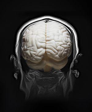 Os processos de destruição cerebral e os de ativação celular se contrapõem.