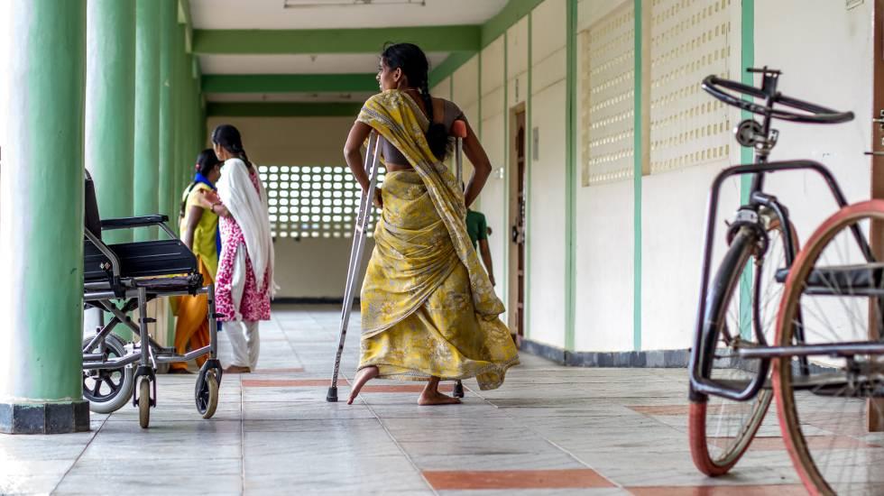 Uma menina que sofre de paralisia em consequência da pólio