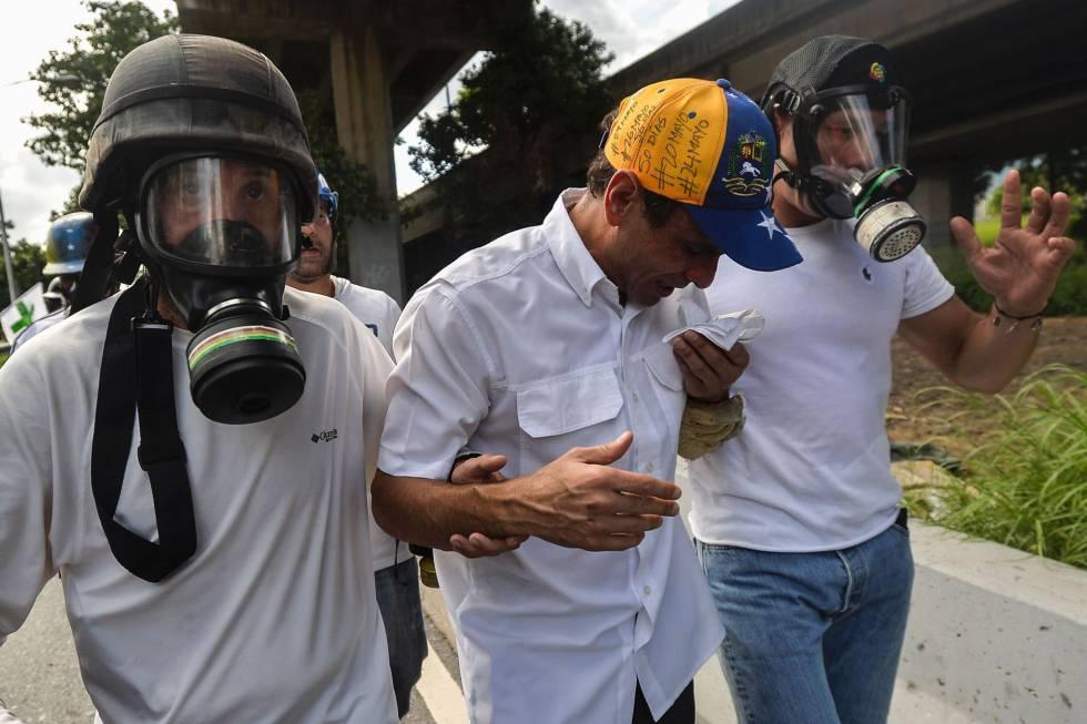 Henrique Capriles é atendido depois da agressão