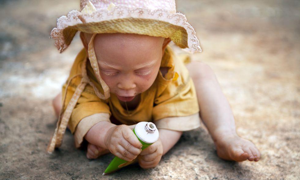Uma criança albina em Tanzania.