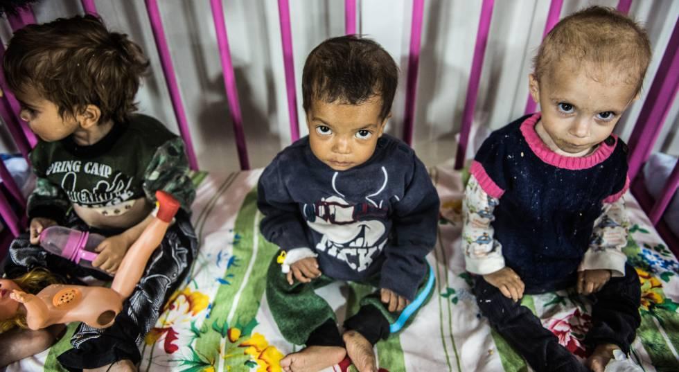 Três filhos de jihadistas do Estado Islâmico num hospital curdo do nordeste da Síria.