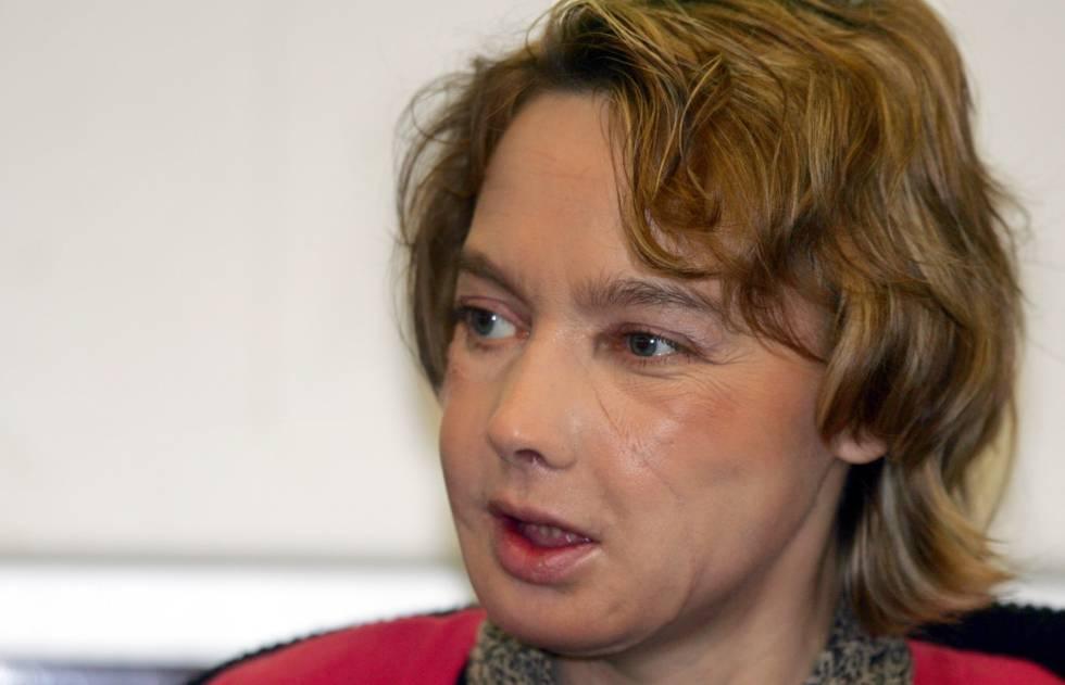 Isabelle Dinoire em fevereiro de 2006.