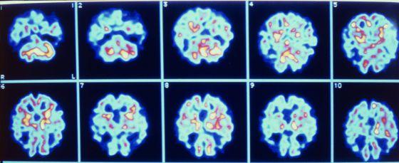Imagens de um cérebro com Alzheimer.