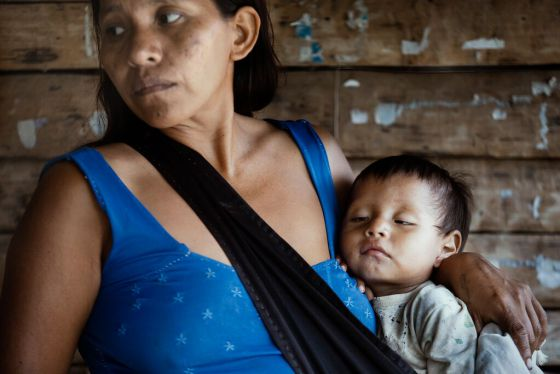 Maura Madja, 27 anos, segura o filho doente, Sheyenne, de um ano.