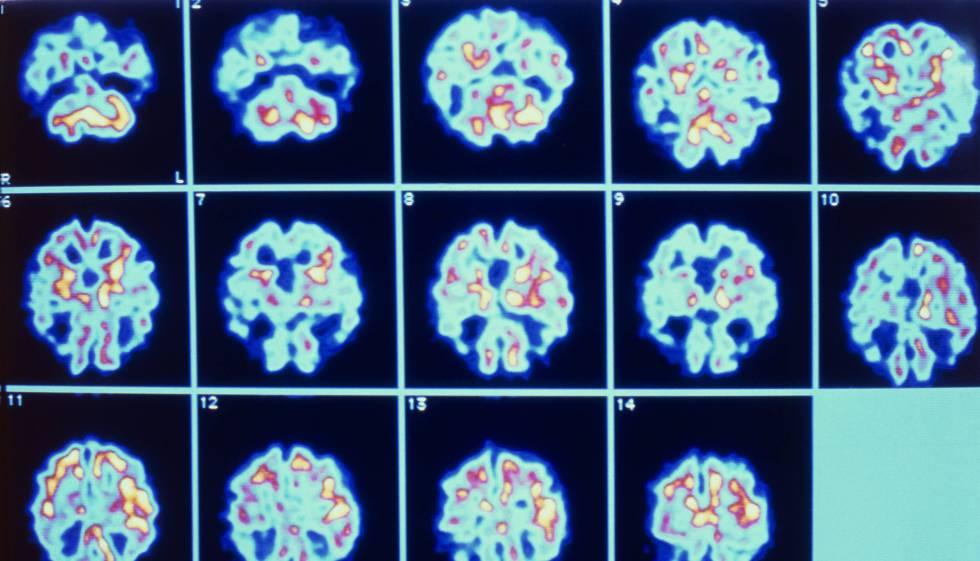 Série de imagens do cérebro de um paciente com Alzheimer obtidas através de PET.