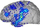 Pesquisadores conseguem traduzir os sinais elétricos do cérebro em palavras e frases completas