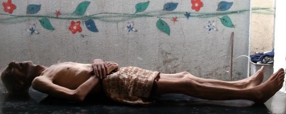 O corpo de Awad al-Said, que morreu de fome, segundo moradores de Yarmuk, em Damasco. / AP