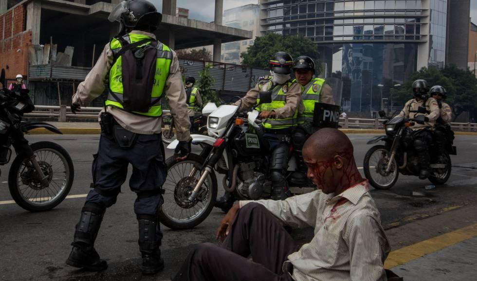 Homem ferido junto a policiais da Guarda Nacional Bolivariana.