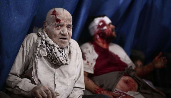 Feridos esperam atendimento em um hospital improvisado na sitiada cidade de Douma, um foco rebelde ao nordeste de Damasco.