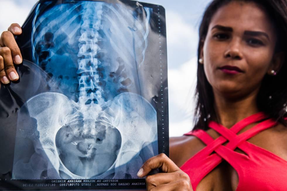 Adriana Caldas dos Santos com o exame que mostra as molas do Essure