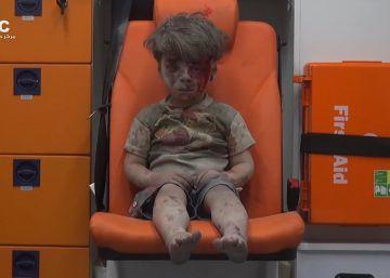 Grupo ativista rebelde Aleppo Media Center divulga imagem de um menino de cinco anos ferido durante um bombardeio recente